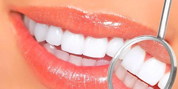 Profesionálne bielenie zubov - len na Zľavomate