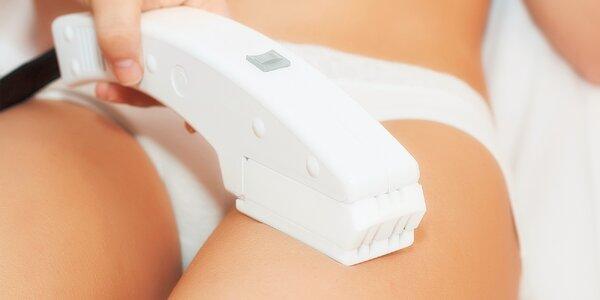 Profesionálna laserová epilacia vybraných lokalít tela