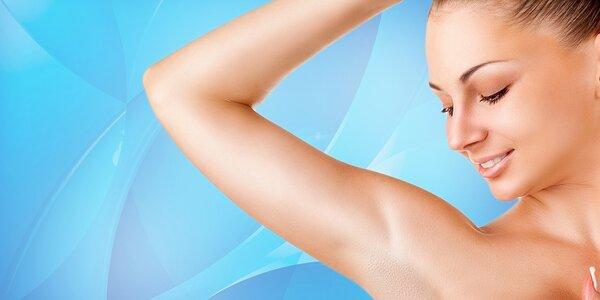 Trvalé odstránenie chĺpkov fotoepiláciou