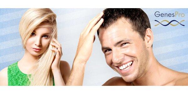Genetický test mužskej a ženskej plešatosti