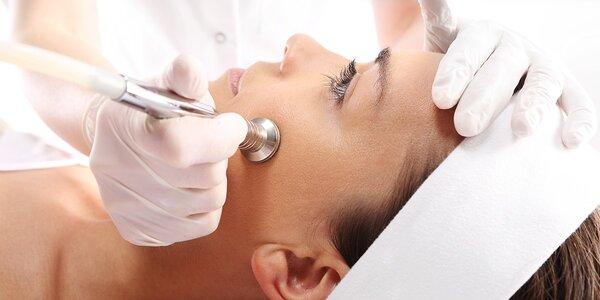 Dermabrázia či ošetrenie ultrazvukom