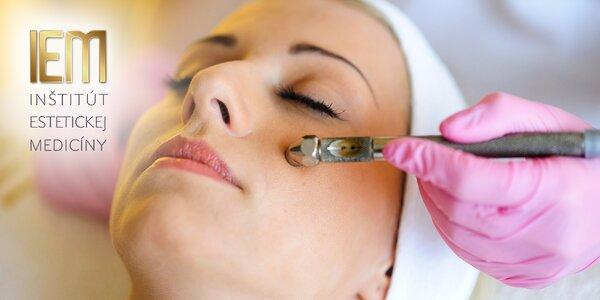 Krásna pokožka s diamantovou mikrodermabráziou a LED terapiou