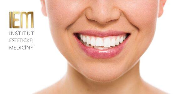 Luxusné bielenie zubov gélom s unikátnými vlastnosťami