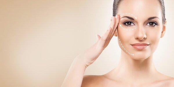 Neinvazívny lifting očných viečok a vačkov pod očami a ošetrenie dvojitej brady