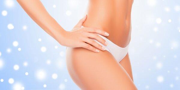 Trvalé odstránenie tuku neinvazívnou liposukciou