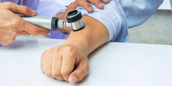 Vyšetrenie znamienok digitálnym dermatoskopom