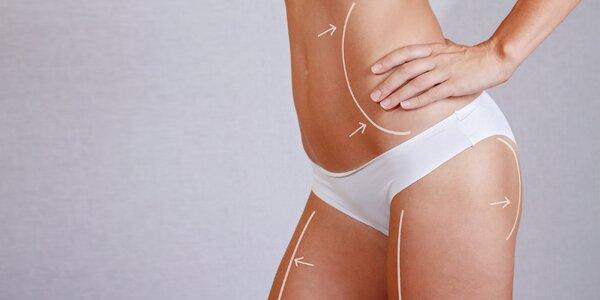 Kryolipolýza, laserová liposukcia a vibračná plošina