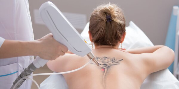 Odstránenie tetovania pomocou laseru