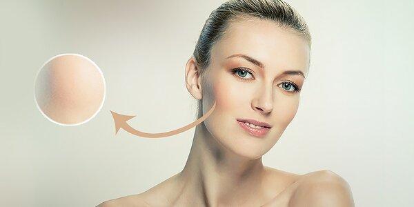 Facelift pleti kmeňovými bunkami s ulterapiou