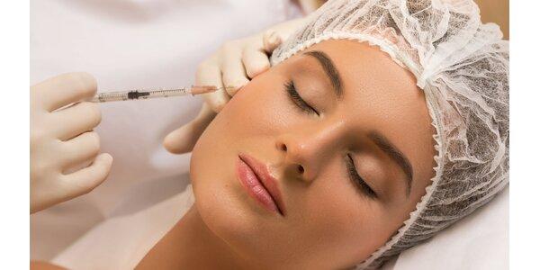Aplikácia kyseliny hyalurónovej do oblasti tváre