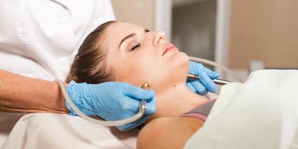 Diamantová dermabrázia či fotónová LED terapia