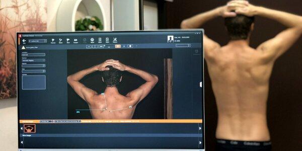 Vyšetrenie, diagnostika a odstránenie znamienok Fotofinderom