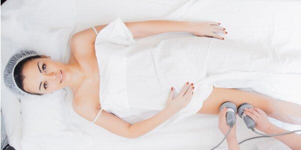 Ultrazvuková liposukcia BODYZONE