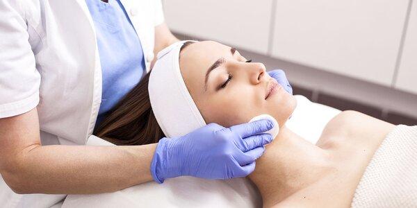 Chemický peeling, čistenie alebo mezoterapia