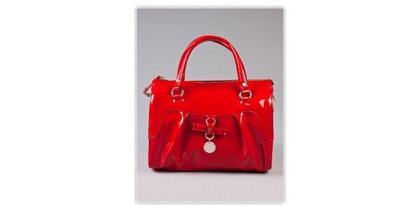 Dámska ohnivo červená lakovaná kabelka s odnímatelným popruhom Ferré Milano