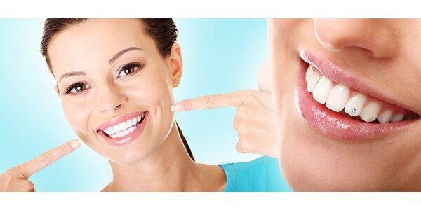 Bielenie zubov alebo osadenie šperkom Swarovski