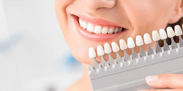 Balíček all inclusive: dentálna hygiena + bielenie