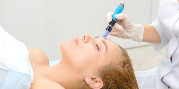 Viditeľné omladenie celej tváre mezoterapiou