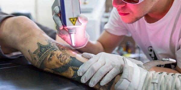 Odstránenie tetovania laserom a zľava na pretetovanie