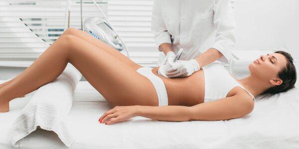 Lymfodrenáž, GMP cvičenie či odstránenie tuku