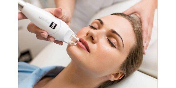 Lipomasáž tváre alebo tela prístrojom LPG Alliance
