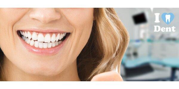Bielenie zubov a/alebo dentálna hygiena