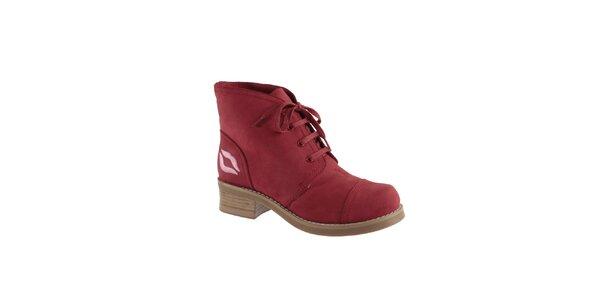 Dámske červené členkové topánky s pusinkou Lola Ramona