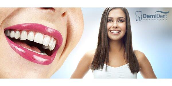 Profesionálne bielenie zubov
