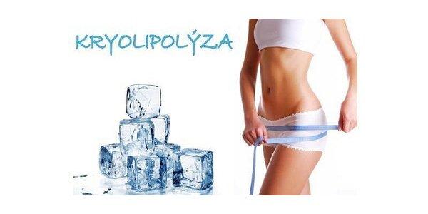 Kryolipolýza v Aspira centre 30 min (jedno nasatie)