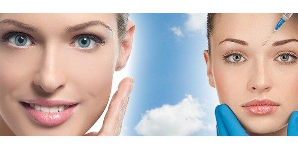 ošetrenie Botox-om v SOFYC CLINIC