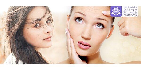 Odstránenie mimických vrások botoxom