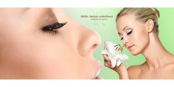 Plastická operácia nosa