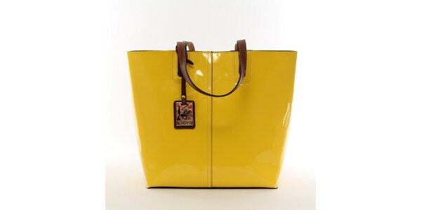 Dámska žiarivo žltá kabelka s vynímateľným vreckom Beverly Hills Polo Club