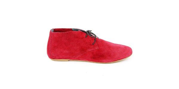 Dámske čerešňovo červené semišové členkové topánky Eye