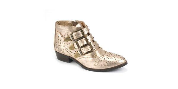 Dámske lesklé topánky s prackami Bronx