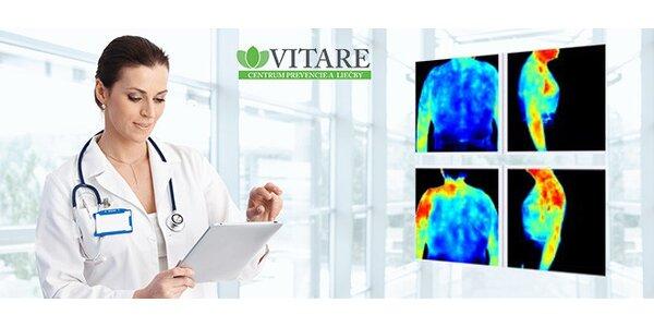 Termografická diagnostika s terapiou