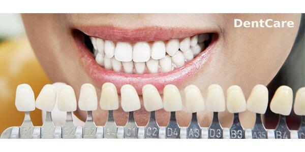 Bielenie zubov bieliacim gélom do individuálneho nosiča