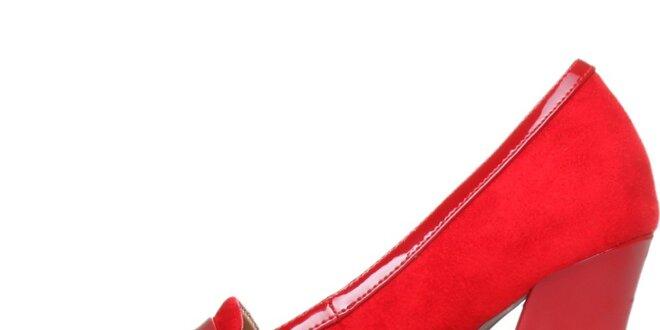 Elegantné červené lodičky Ana Lublin