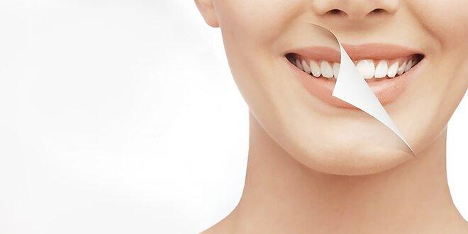 Certifikované bielenie zubov SMILEPOINT