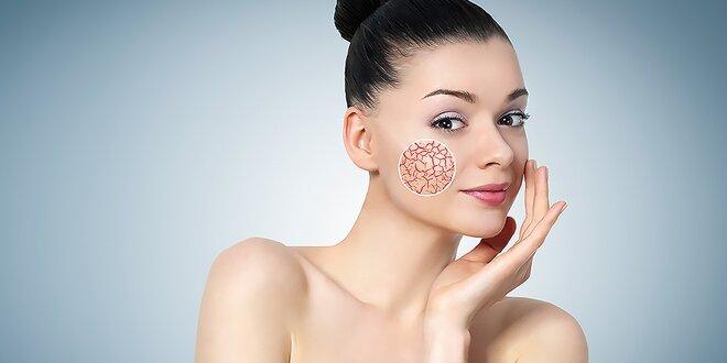 Odstránenie červených žiliek na tvári a tele