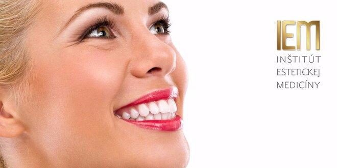 Bielenie zubov špeciálnym gélom