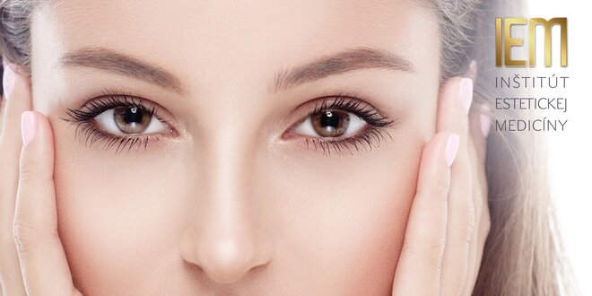 Odstránenie kruhov pod očami výplňovým materiálom TEOSYAL Redensity II Eyes