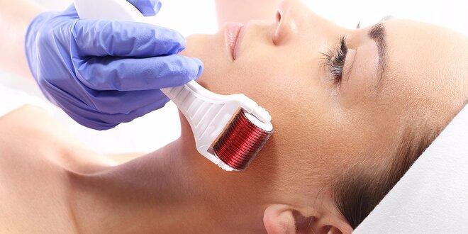 Letné vitamínové ošetrenie mezoterapiou alebo ultrazvukový lifting