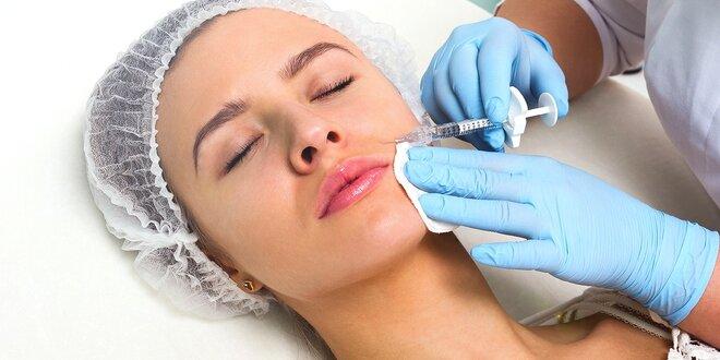 Omladenie tváre mezoterapiou s kyselinou hyalurónovou a vitamínová bomba proti…