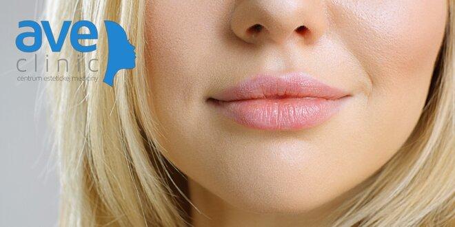 Zväčšenie pier s výplňou Princess® Filler alebo Teosyal Kiss PureSense