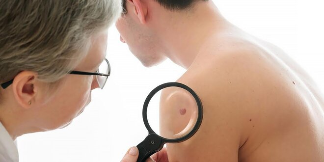 Vyšetrenie znamienok s možnosťou odstránenia kožného útvaru