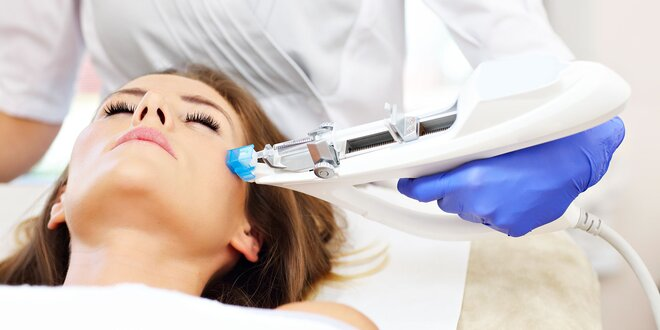 Mezoterapia tváre alebo krku Dermaheal HSR - omladenie na počkanie!