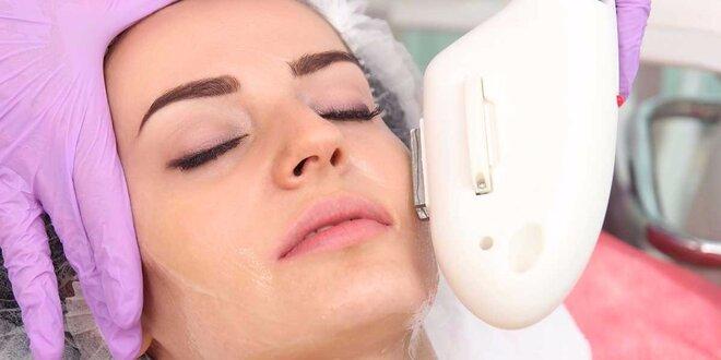 Omladenie tváre, krku a dekoltu bez jaziev a pigmentových škvŕn pomocou IPL