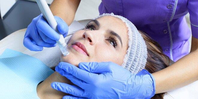 Dermabrázia a hĺbkové čistenie pleti alebo mezoterapia s kyselinou hyalurónovou