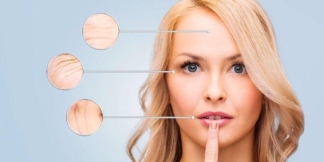 Ošetrenie pleti chemickým peelingom Neostrata, ultrazvukom alebo ozónom